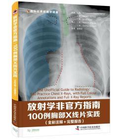 放射学非官方指南:100例胸部X线片实践:100 practice chest X-rays, with full colour annotations and full X-ray reports:全彩注释+完整报告