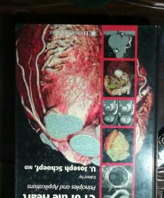 CT of the heart-principles and APPlications Edited by