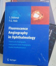 Fluorescence Angiography In Ophthalmology[荧光血管造影在眼科学]