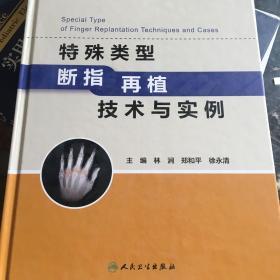 特殊类型断指再植技术与实例