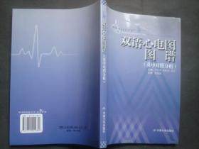 双语心电图图谱(英中对照分析).