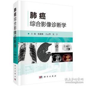 肺癌综合影像诊断学