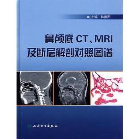 鼻颅底CT、MRI及底断层解剖对照图谱