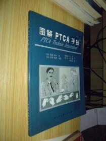 图解PTCA手技
