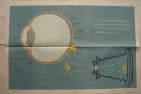 学校卫生保健挂图 保护视力预防近视(第二套)近视眼是怎样形成的 一套4张全 1964年 2开