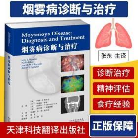 烟雾病诊断与治疗
