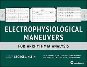 预订 Electrophysiological Maneuvers for Arrhythmia Analysis