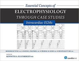 预订 Essential Concepts of Electrophysiology through Case Studies: Intracardiac EGMs