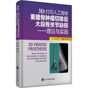 3D打印人工假体重建骨肿瘤切除后大段骨关节缺损——理论与实践