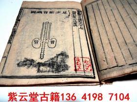 【清】木刻版画;中医针灸穴位图【医宗金鉴,卷67】#5674