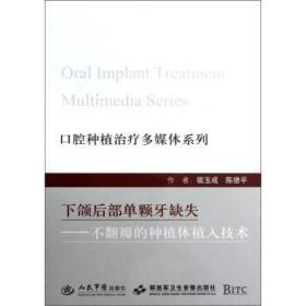 口腔种植治疗多媒体系列:下颌后部单颗牙缺失—不翻瓣的种植体植