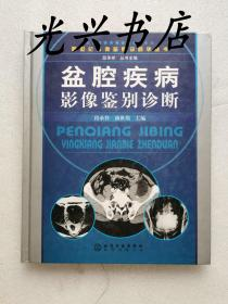 盆腔疾病影像鉴别诊断