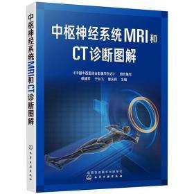 中樞神經系統MRI和CT診斷圖解