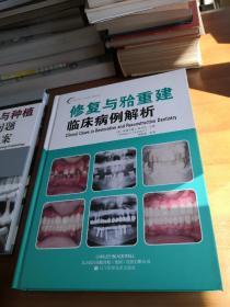 口腔临床病例解析丛书:修复与牙合重建临床病例解析
