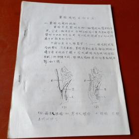 【油印医学文稿】重睑成形术(切开法)、埋没缝合法重睑成形术