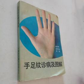 手足纹诊病及图解