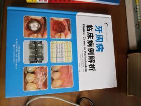 口腔临床病例解析丛书:牙周病临床病例解析