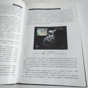 腹腔镜超声诊断学