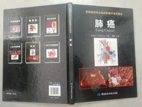 美国癌症协会临床肿瘤学系列图书:肺癌