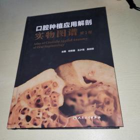 口腔种植应用解剖实物图谱(第2版)