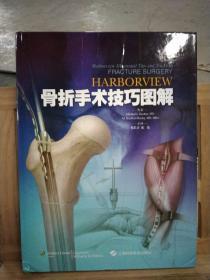 Harborview 骨折手术技巧图解