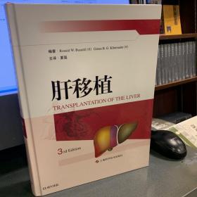 肝移植--{b1645590000171365}
