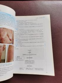 国家卫生和计划生育委员会住院医师规范化培训规划教材·皮肤性病学