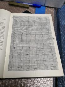 心律失常心电图分析