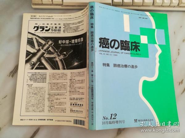 癌的临床特集 肺癌治疗的进步(日文原版)《40859》