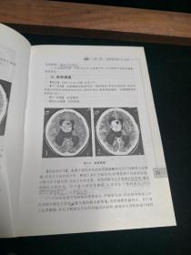 现代CT与MRI诊断技术