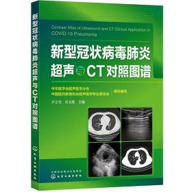 新型冠状病毒肺炎超声与CT对照图谱
