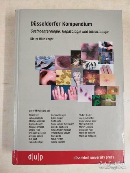 Düsseldorfer Kompendium:Gastroenterologie,Hepatologie und Infektiologie(杜塞尔多夫纲要:消化内科,肝病学和感染学)