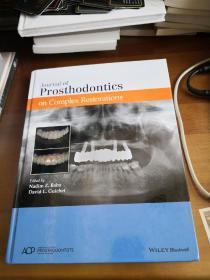 【英文原版,牙齿修复,口腔修复】Prosthodontics on complex restorations  (复杂修复体修复)