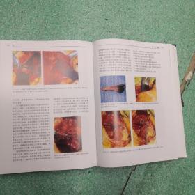 骨科手术技术丛书:肩(第3版)书脊有伤看图