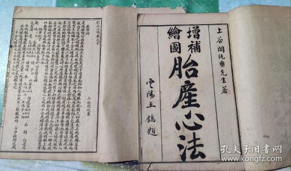 增补绘图胎产心法(胎产心法)卷上卷下两册.