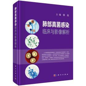 肺部真菌感染临床与影像解析