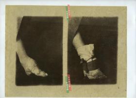 1880年代清代妇女的小脚三寸金莲特写大幅蛋白照片,光脚与穿鞋袜后的对比,尺寸为26.5X20.2厘米。一张照片,左右两个影像。