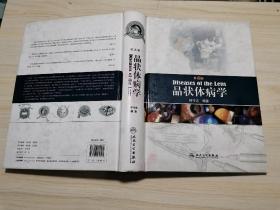 晶状体病学(第2版)