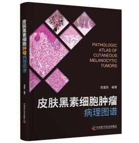 皮肤黑素细胞肿瘤病理图谱