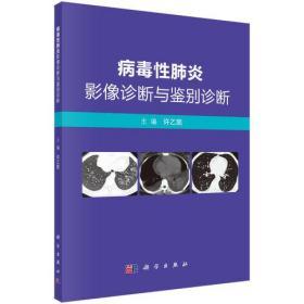 病毒性肺炎影像诊断与鉴别诊断