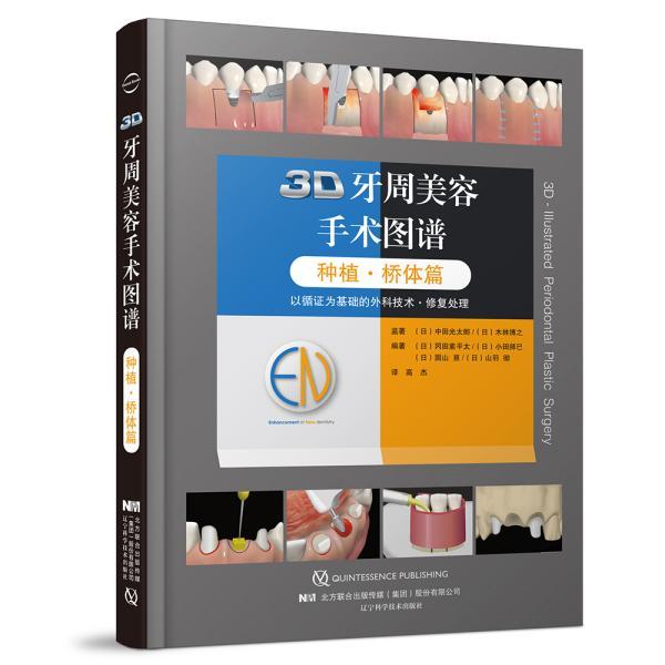 3D牙周美容手术图谱(种植桥体篇)(精)