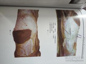 软组织痛的基础与临床李义凯教授全新正版