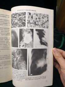 肺部疾病的X线病理诊断