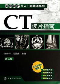 CT读片指南(第2版)/影像读片从入门到精通系列