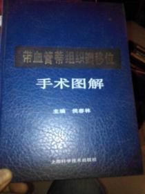 带血管蒂组织瓣移位手术图解 (精装) /侯春林 主编 上海科学技术?