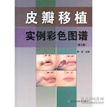 皮瓣移植实例彩色图谱(第2版)