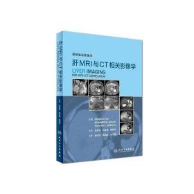 肝MRI与CT相关影像学 肖恩华 9787117243612 人民卫生出版社 正版图书