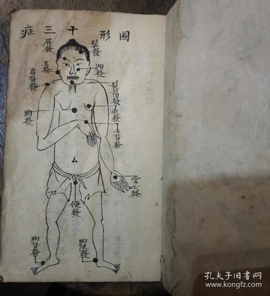 图画漂亮清代手稿图形症状医书秘籍