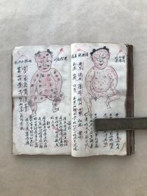 清代中医手抄本:痘科形图,内有74幅痘科插图,都带药方,(中医025)
