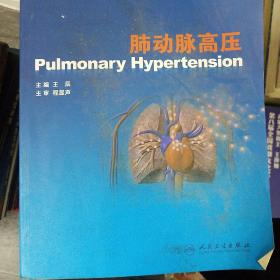 肺动脉高压(存16开)